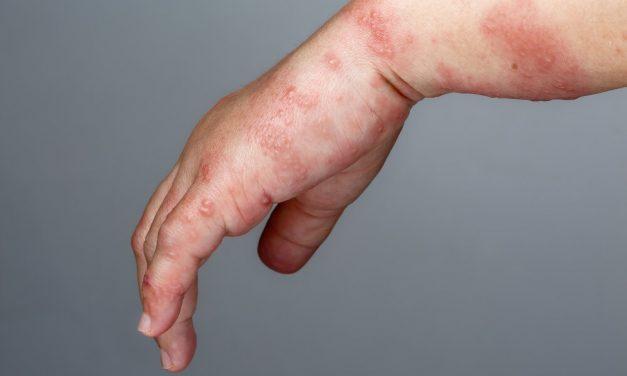 Pásový opar a nepríjemné bolesti? Odborníci radia ako sa ich zbaviť