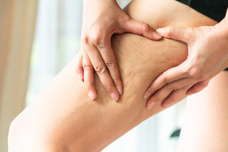 Ženská ruka drží tukovú celulitídu a strie na nohe