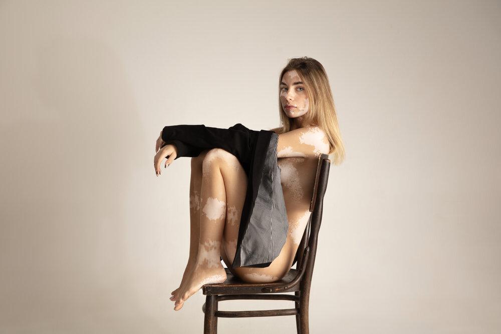 Telo krásnej mladej ženy s vitiligom. Autoimunitné ochorenie. Nedostatok pigmentácie kože.