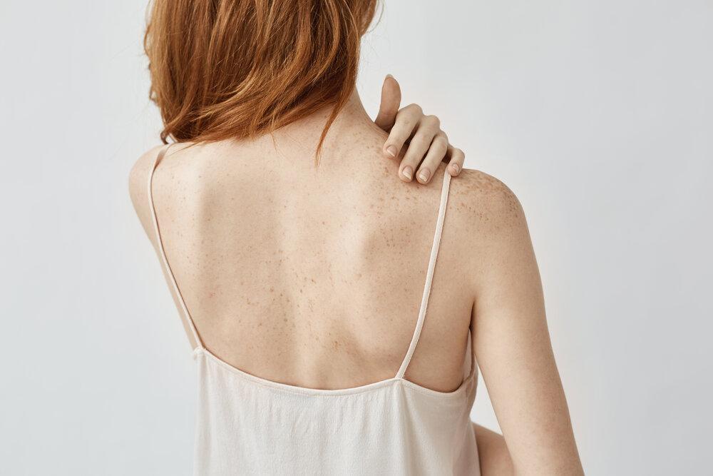 Ryšavá žena má na chrbte pigmentové škvrny