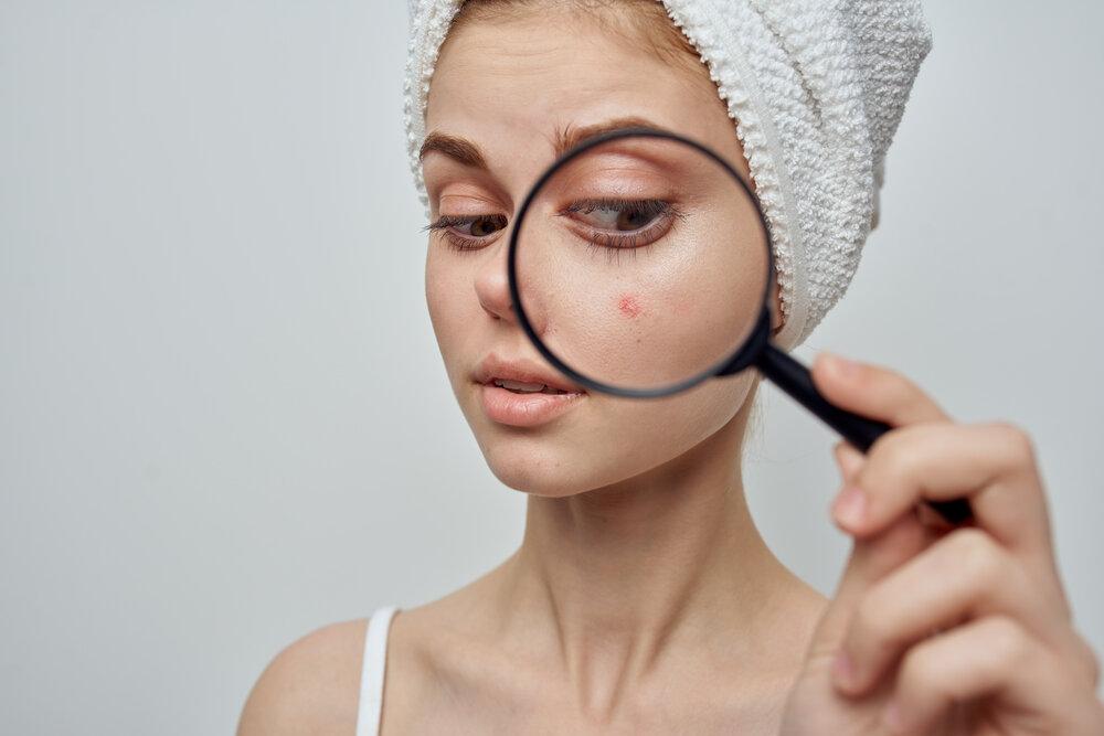 žena s uterákom na hlave zväčšuje problémy s pupienkami prostredníctvom lupy.