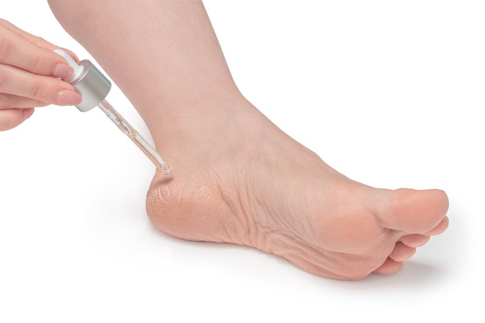 Žena lieči pomocou pipety dehydratovanú pokožku na nohách