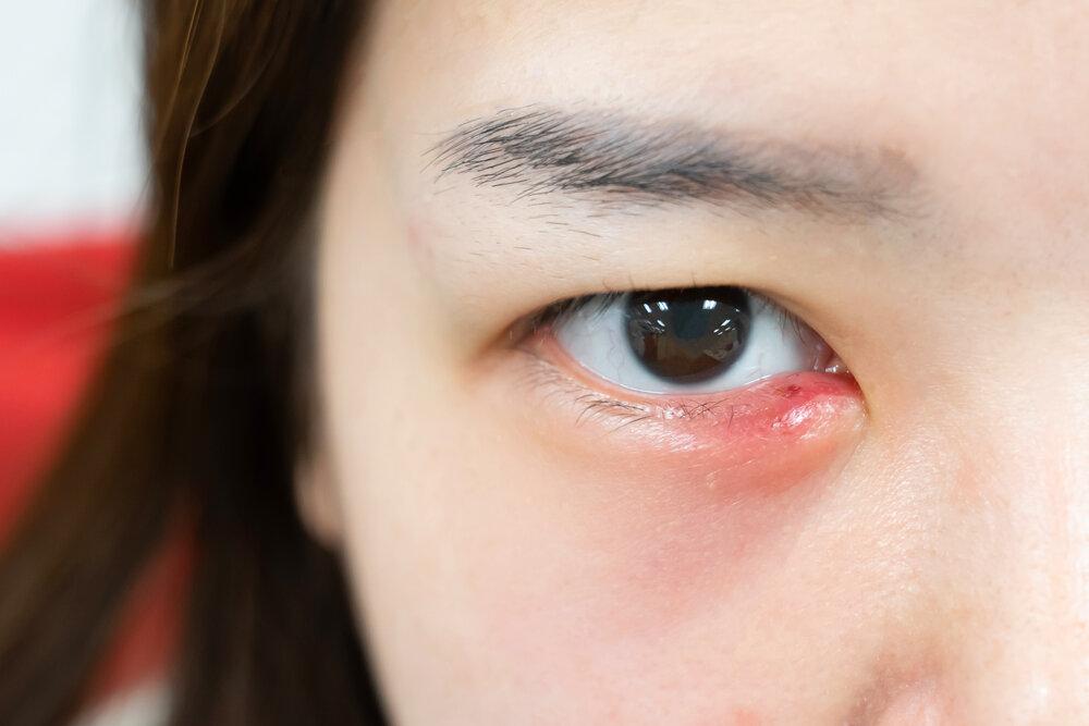 Infekcia mladej ázijskej ženy. Jačmeň v oku.