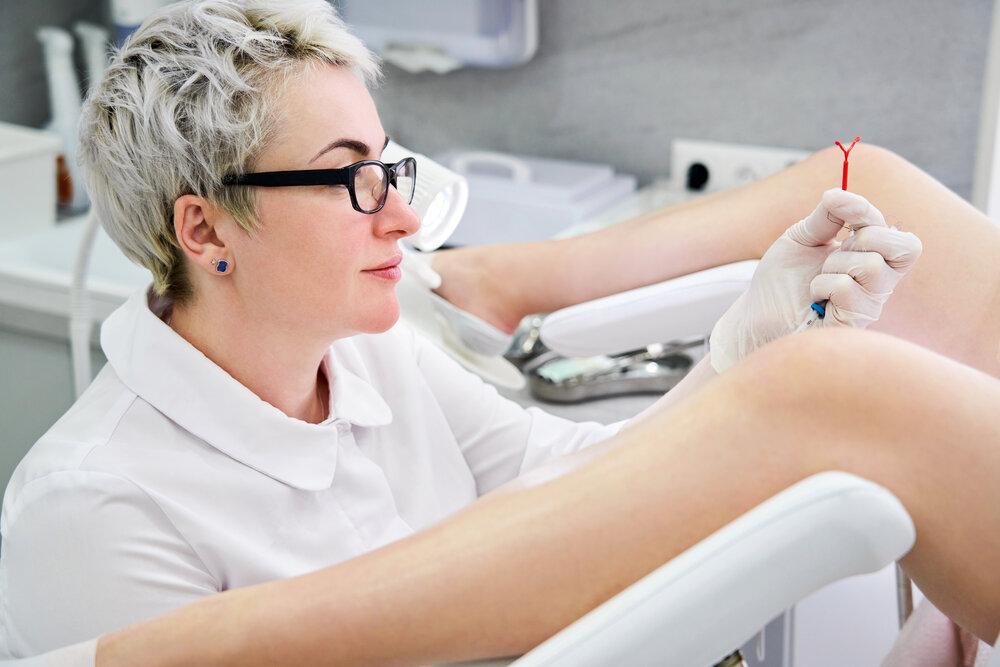 Gynekologička sa chystá vložiť pacientke medené vnútromaternicové teliesko