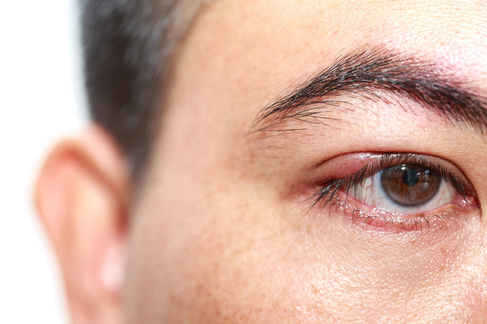 Začervenané oči mladého muža, alergická reakcia, jačmeň na oku