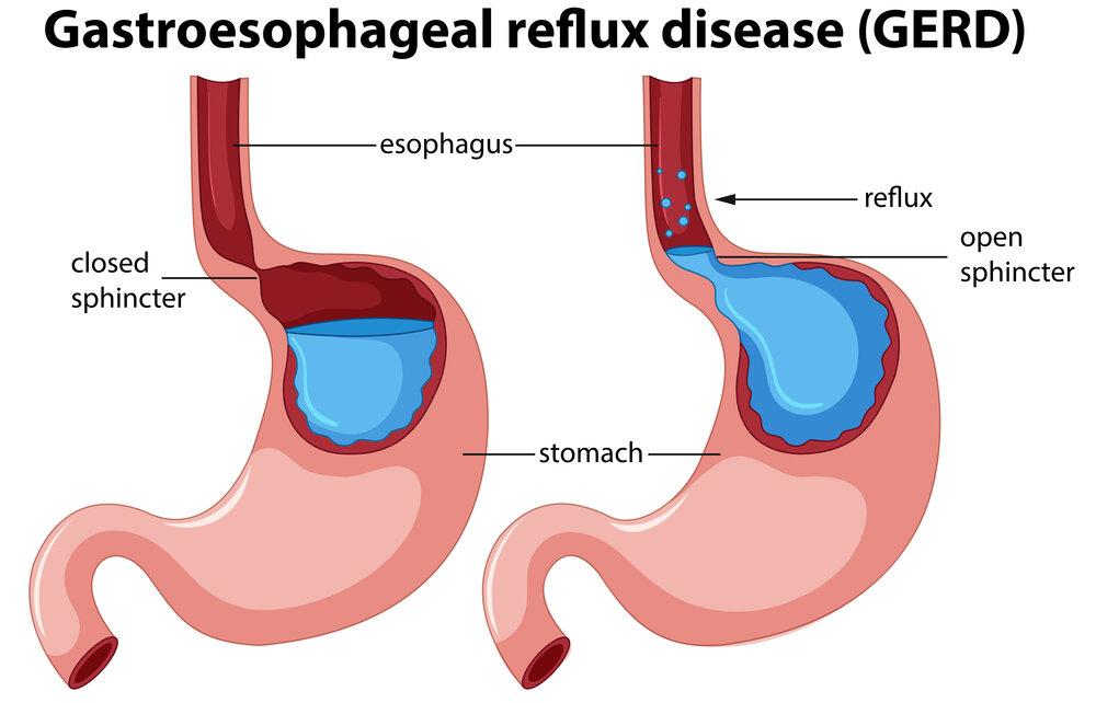 Ilustrácia anatómie gastroezofageálneho refluxu